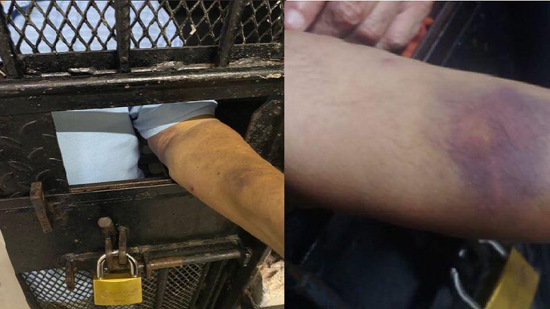 चोकसीच्या समोर आलेल्या फोटोत तो खूप आजारी असल्यासारखा दिसत आहे. कैद्यांच्या कपड्यात त्याच्या हाताला शाई लागल्यासारखी त्याचे हात एकदम काळे निळे दिसत आहेत. तसंच डोळेही अगदी लाल दिसत आहेत. (photo - Antigua News Room, ANI)