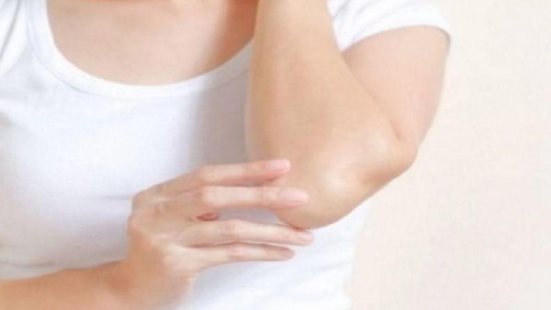 हातावरचा कोरडेपणा दूर करण्यासाठी आपण दुधावरची साय हाताला लावली पाहिजे. यामुळे हातावरील कोरडेपणा निघून जाण्यास मदत होते.