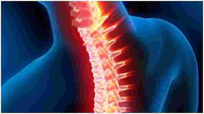 बऱ्याच वेळा, चुकीच्या बसल्यामुळे, पाठीच्या कण्याभोवती असलेल्या मज्जातंतूंवर दबाव निर्माण होतो. अशा परिस्थितीत गर्भाशयाचा त्रास सुरू होतो. यामुळे हात आणि पाय सुन्न होतात. या प्रकरणात, त्वरित डॉक्टरांशी संपर्क साधा.