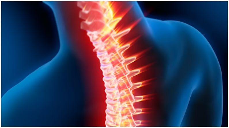 बऱ्याच वेळा, चुकीच्या पद्धतीने बसल्यामुळे, पाठीच्या कण्याभोवती असलेल्या मज्जातंतूंवर ताण येतो. अशा परिस्थितीत सर्वायकलचा त्रास सुरू होतो. यामुळे हात आणि पाय सुन्न होतात. असं जर होत असेल तर त्वरित डॉक्टरांशी संपर्क साधावा.