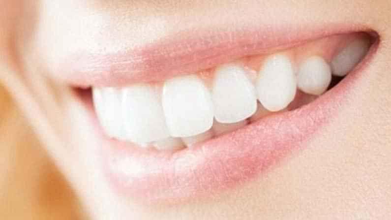 औषधोपचारानं दात पांढरे करण्यास मदत होते, आणि दातांवरील डाग टाळता येतात.