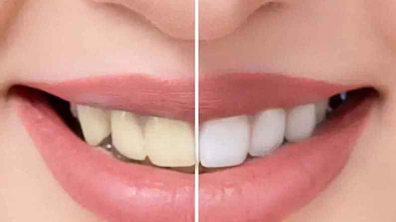 बेकिंग सोडामध्ये दात पांढरे करण्याचे गुणधर्म असल्याचं म्हटलं जाते. काही आठवड्यांत फरक पाहण्यासाठी तुम्हाला फक्त तुमच्या दातांवर ते हळूवारपणे चोळावे लागेल.
