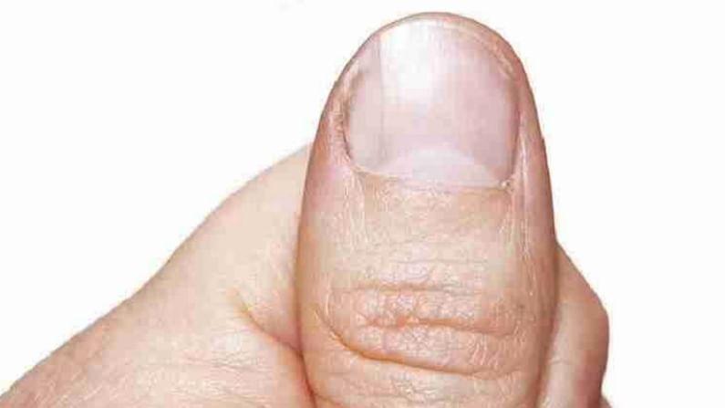 हात नीट धुवा. यानंतर, लोणी घ्या आणि हलक्या हाताने नखांच्या सभोवतालच्या काळ्या त्वचेला मसाज करा. त्यानंतर ते रात्रभर सोडा. असे केल्याने नखांभोवती असलेला काळपटपणा दूर होतो. याशिवाय जर तुमच्या त्वचेवर डाग असेल तर ते लोणी लावून काढले जाऊ शकतात.