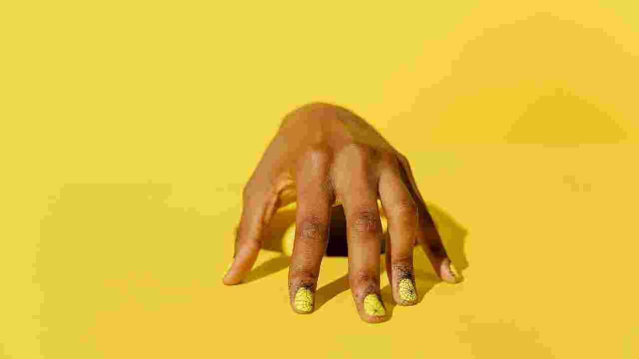 पिवळी नखे : नखे पिवळी पडण्याची समस्या सहसा संसर्ग किंवा नेल पॉलिशसारख्या उत्पादनाचा साईड इफेक्ट झाल्यामुळे होऊ शकते. नखे पिवळी होणे देखील आपल्या हृदयाशी संबंधित असू शकते. म्हणून डॉक्टरकडे जाण्याचा सल्ला दिला जातो.